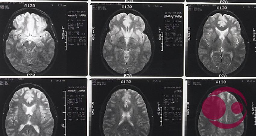 Screen mehrerer Gehirne